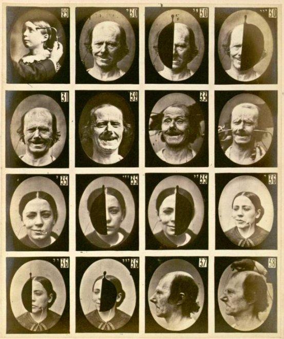 Para su obra utilizó seis modelos, pacientes suyos con discapacidades mentales, a los cuales cuidaba de no causar dolor alguno, por lo que siempre traía anestesistas profesionales a las sesiones.