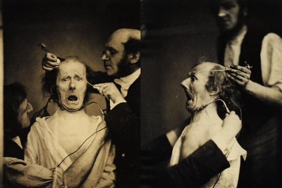 Uno de los experimentos científicos más llamativos, por su carácter visual, sea posiblemente el experimento sobre electro-estimulación en músculos faciales realizado por Guillaume-Benjamin-Amand Duchenne de Boulogne.
